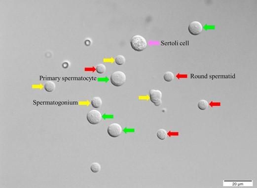 בתמונה מראה רקמה אשכית תחת הגדלה. התאים המסומנים באדום הם הספרמטידים העגולים המתאימים להפריה, ניתן לראות את דמיונם הרב לתאים המסומנים בצהוב שאינם מתאימים להפריה.